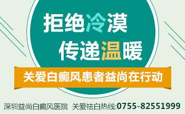深圳白癜风治疗正规医院
